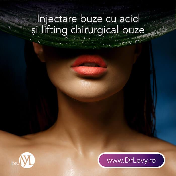 Injectare buze cu Acid Hialuronic Bucuresti Timisoara