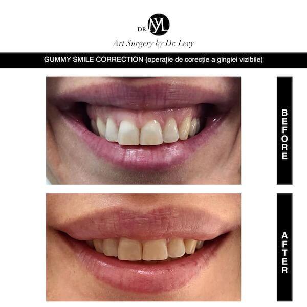 Cel mai bun chirurg plastician Operatii Corectie Gingie Gummy Smile Correction