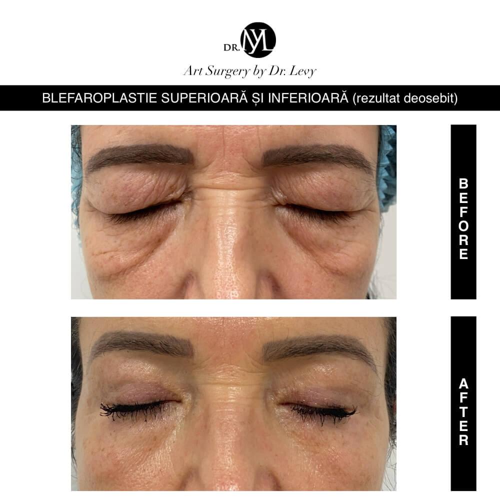 Blefaroplastie superioara inferioara Bucuresti Timisoara preturi recomandari cel mai bun chirurg plastician. Dr. Levy