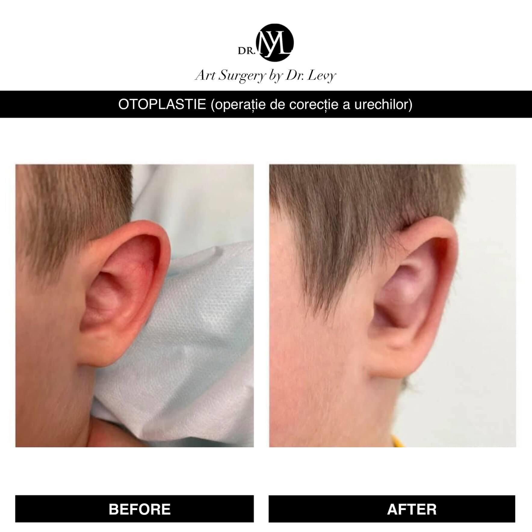 Operatie otoplastie urechi micsorare urechi clapauge Romania Bucuresti Timisoara